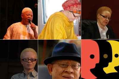 UN Albinism Awareness Day