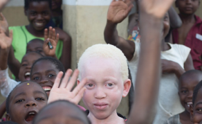 Society Raises Awareness About Albinism