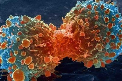 Cancer cells.
