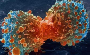 Major Breakthrough for Lesotho Cancer Patients
